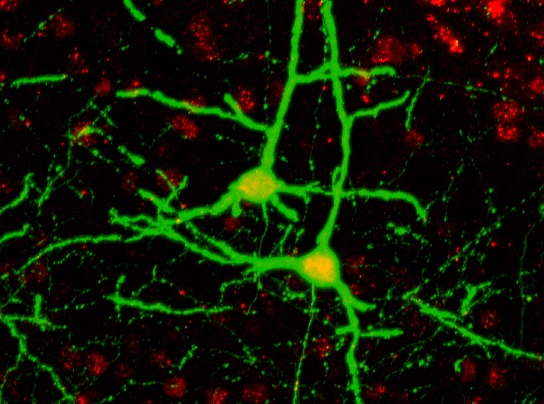 Cortical pyramidal neurons