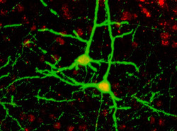 Cortical pyramidal neurons