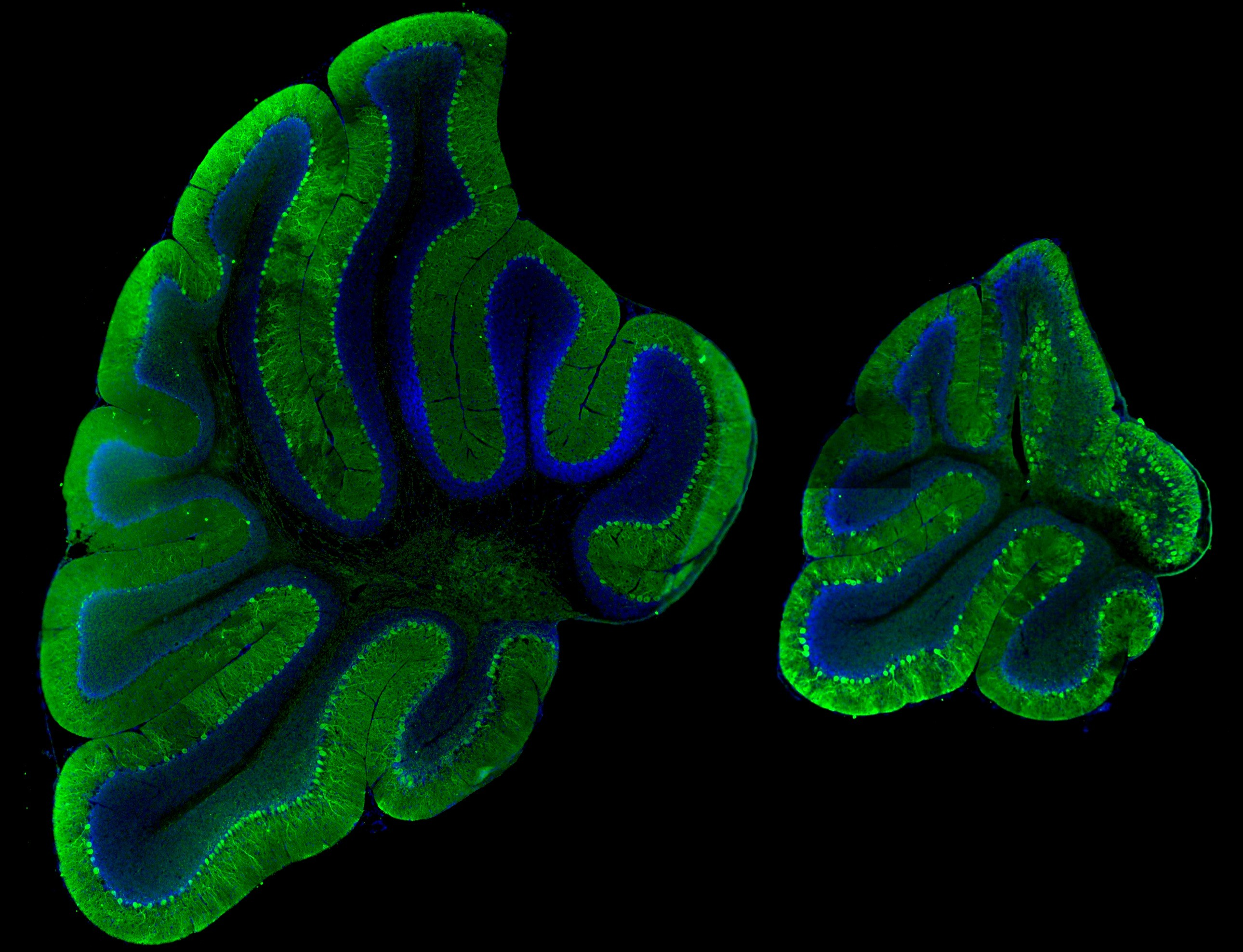 Wild type (left) and Mutant (right) Cerebellum