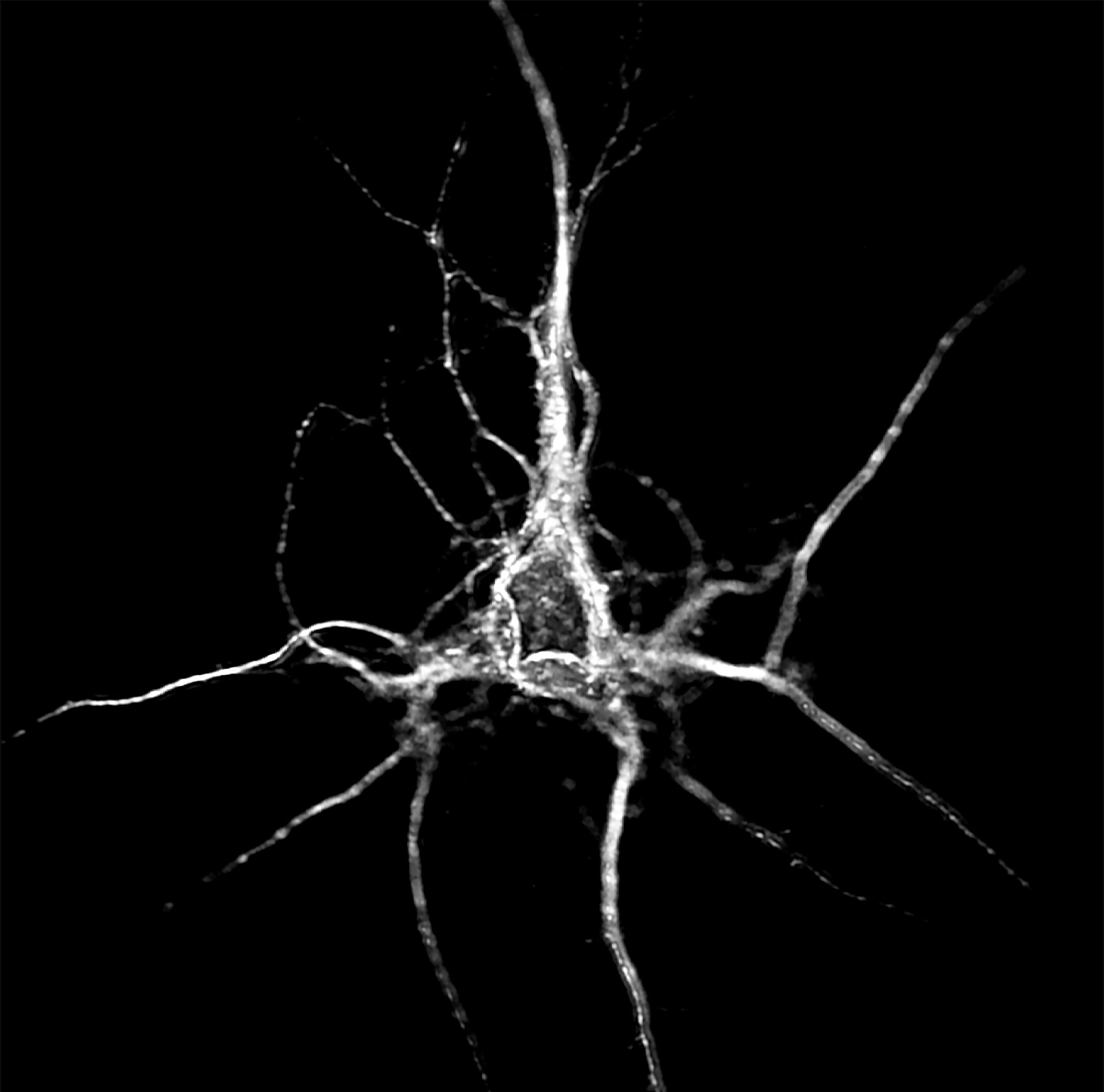 Cortical neuron