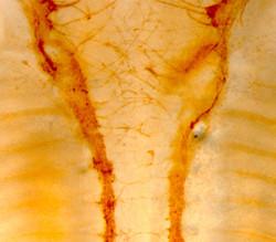 Sympathetic axon aberrant projections