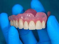 Full & Partial Dentures.jpg