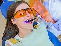 Dental Fillings.jpg
