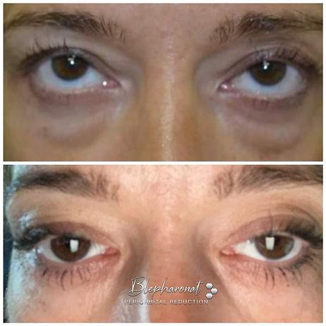 Blephanot - Eye Bag Removal.jpg