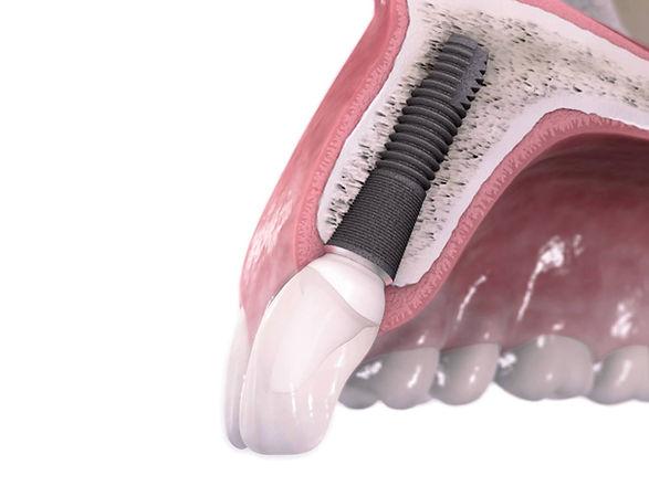 implante3.jpg