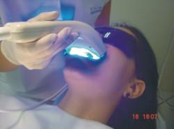 6clareamento+com+led+laser.jpg