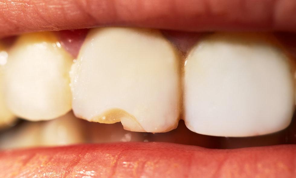 Teeth Grinding - Bruxism