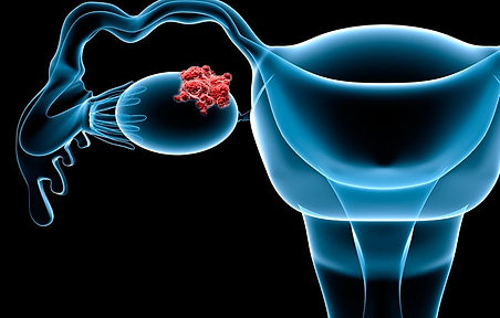 Zantac Lawsuit Ovarian Cancer