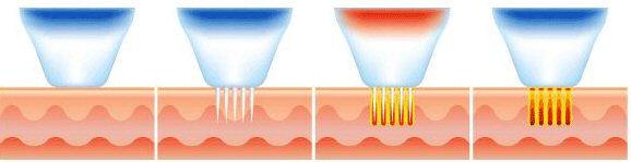 RF-Microneedling (1).jpg