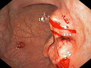 câncer gástrico estômago
