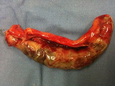 apendice apendicite aguda cirurgia geral urgência