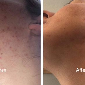Chemical peels - What is the process and what are the benefits?