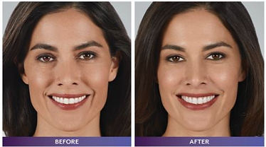 juvederm before and after.JPG