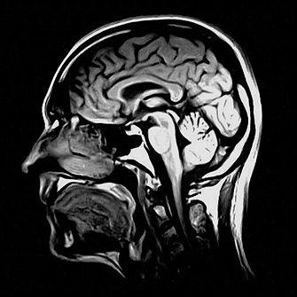 Head MRI.jpg