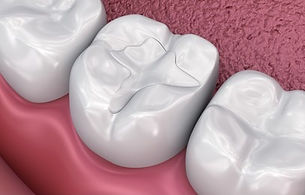 dental-fissure-fillings-medically-accura