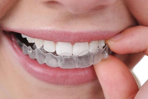aparelho-dentário.jpg