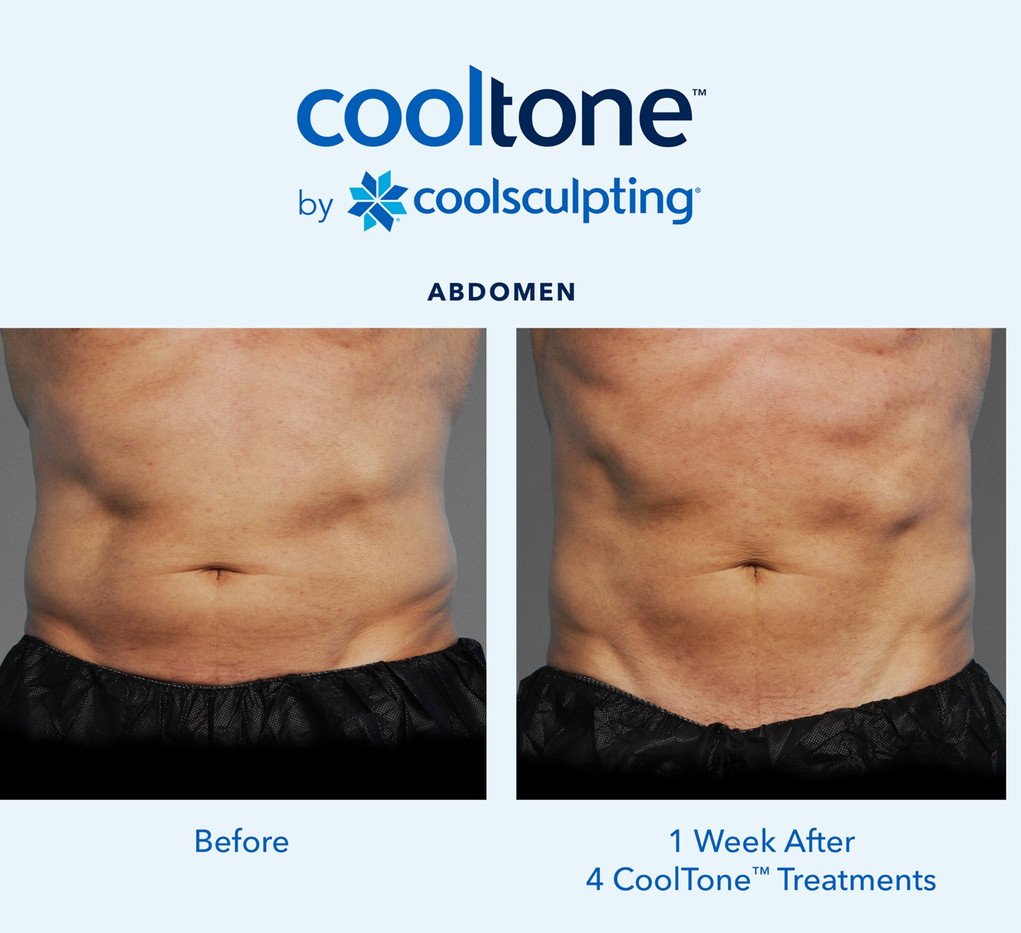 Male Before & After Photo of Cooltone
