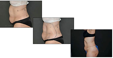 Vasershape cellulite treatment