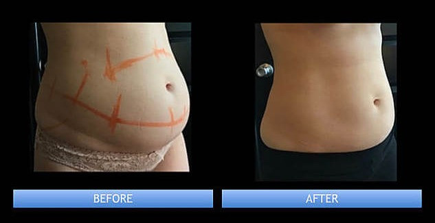 Coolsculpting Las Vegas Before and after
