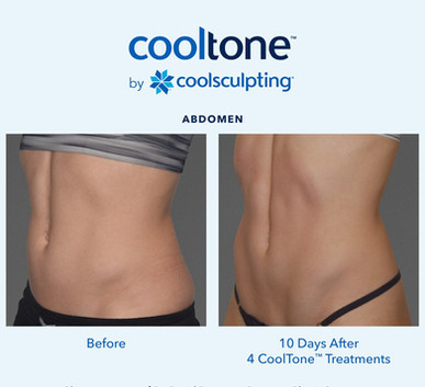 Cooltone Las Vegas Medical Spa Before & After