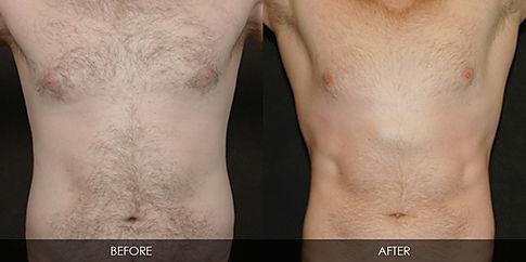 secret body las vegas ilipo for men