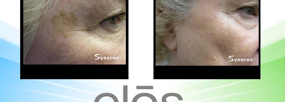 Skin Rejuvenation Henderson Medical Spa