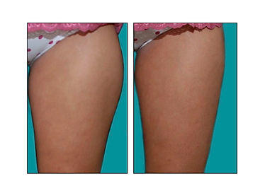 secret body las vegas before and after body contouring