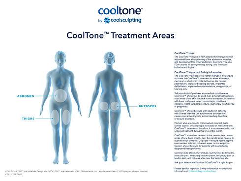 CTN137268-Treatment-Area-Illustration-Ho