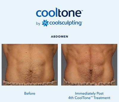 CoolTone-Male-Abdomen-Las Vegas
