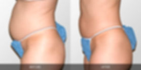 laser lipo secret body las vegas