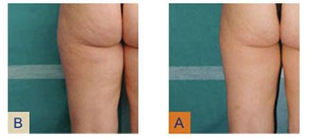 secret body las vegas medical spa cellulite treatment
