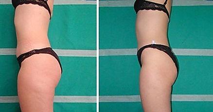 cellulite treatment las vegas medical spa
