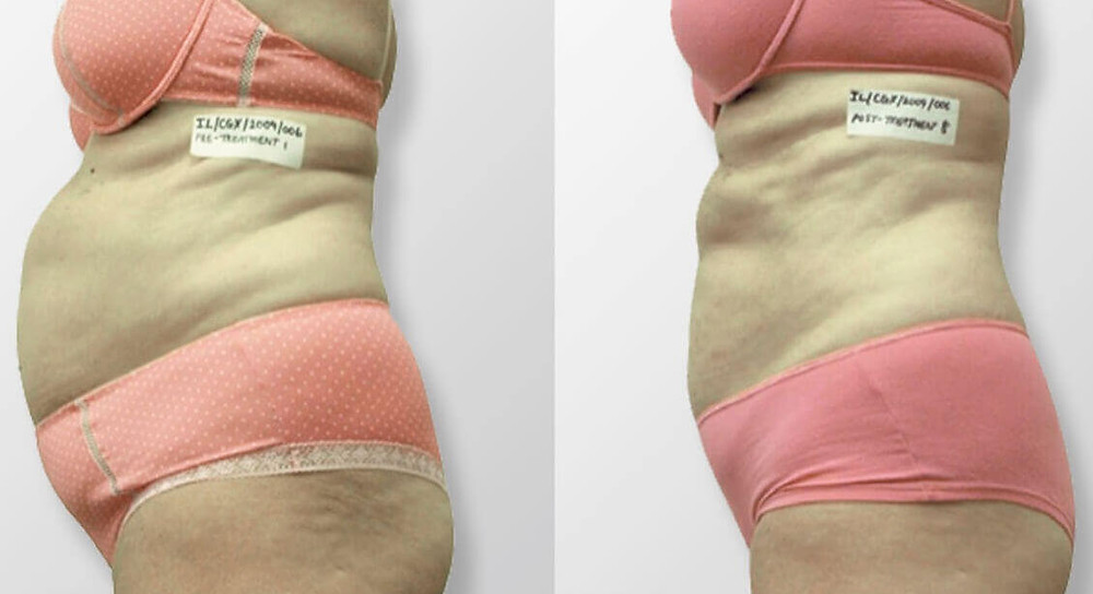 Laser Liposuction before and fafter