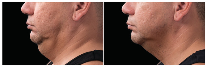 coolsculpting chin before and after2_edi