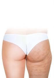 cellulite reduction - skin tightening - secret body henderson reviews