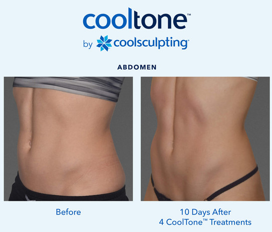 Cooltone las vegas before and after 3.jp