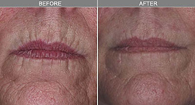 wrinkle reduction las vegas.jpg