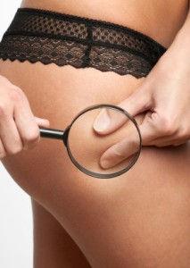 orange peel - cellulite reduction - smoothshapes - secret body henderson reviews