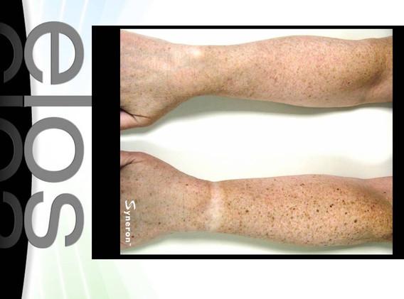 Skin Resurfacing photo facial Las Vegas
