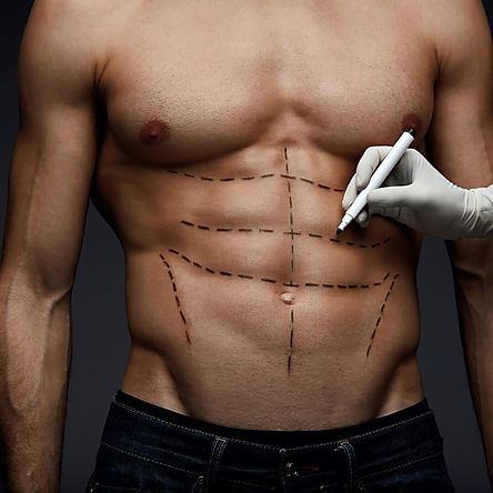 Coolsculpting Las Vegas for Men (2).jpg