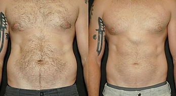 male las vegas before and after ilipo liposuction las vegas alternative.jpg