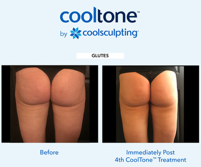 CoolTone Las Vegas before and after 9-Fe
