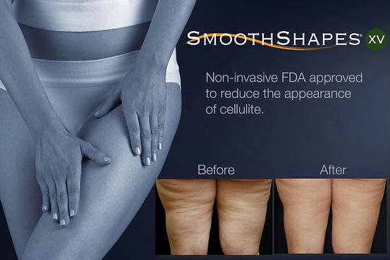 Cellulite Treatment Las Vegass.jpg