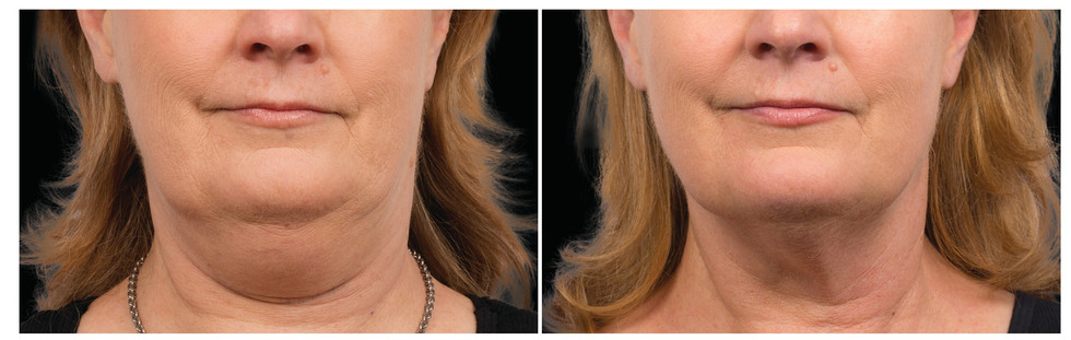 Coolsculpting Before and after_edited.jp