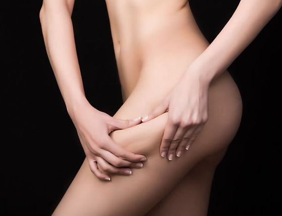 Cellulite Treatments Las Vegas.jpg