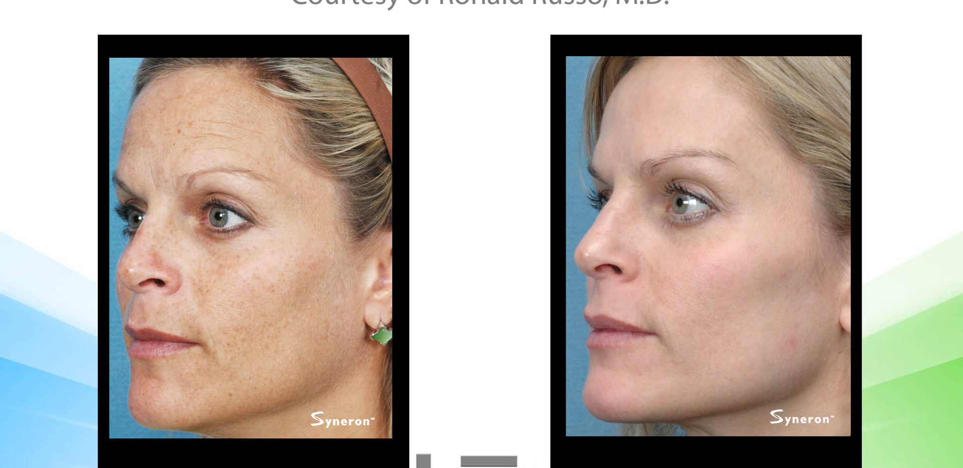 Skin Rejuvenation IPL with Radio Frequency