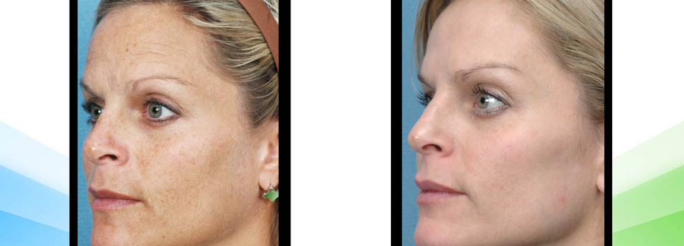 Skin Rejuvenation IPL with Radio Frequency