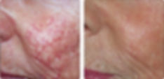 IPL treatment Secret Body Before and after