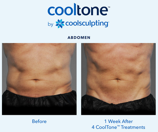 Cooltone Las Vegas before and after 1.jp