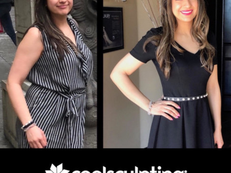 Coolsculpting Las Vegas Before and After Results